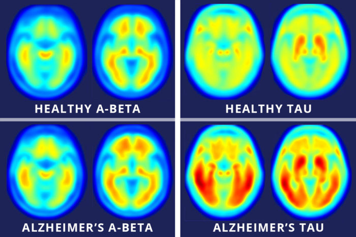 tau imaging in Alzheimer's disease